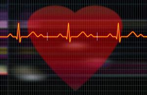 cardioversion