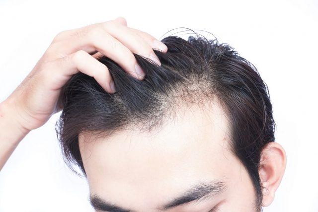 Tout savoir sur la greffe de cheveux